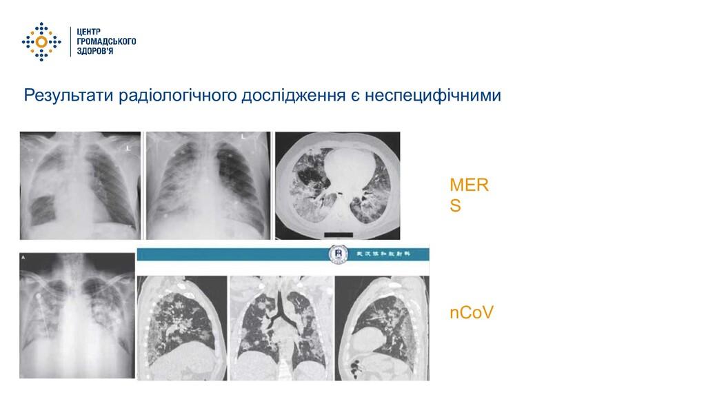 Результати радіологічного дослідження є неспеци...