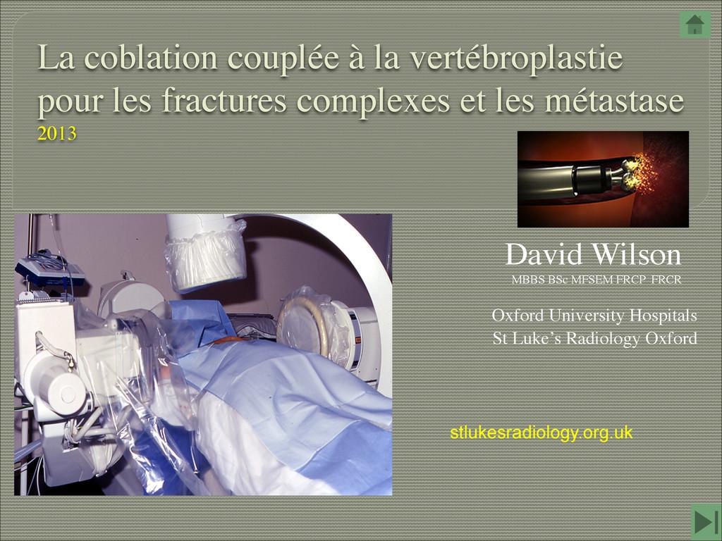 La coblation couplée à la vertébroplastie pour ...