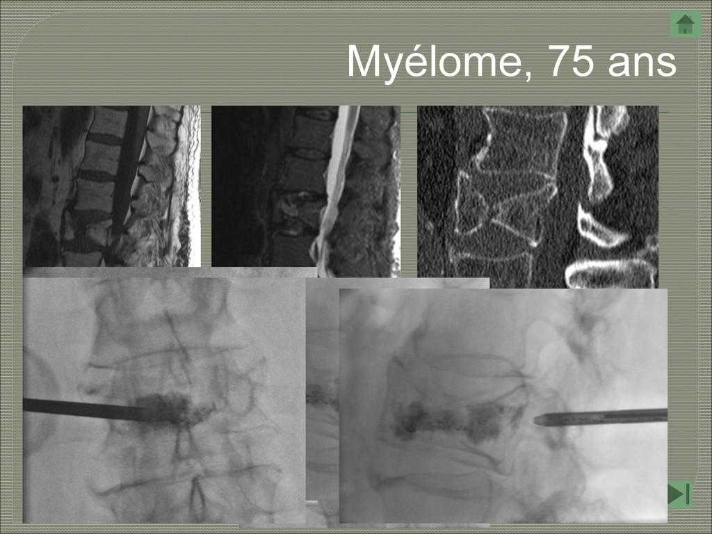 Myélome, 75 ans