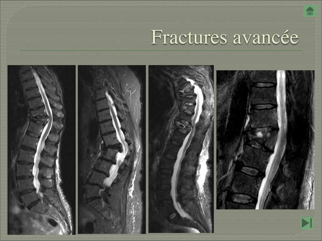Fractures avancée
