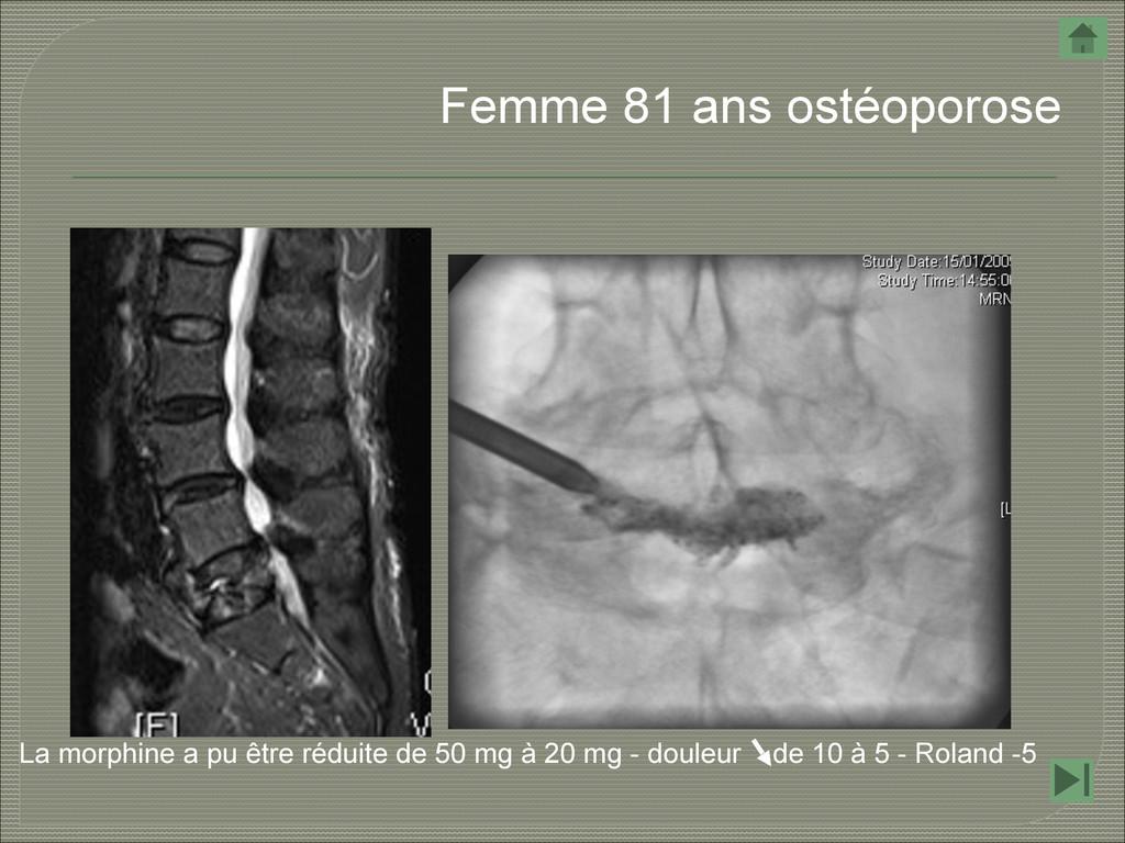 Femme 81 ans ostéoporose La morphine a pu être ...
