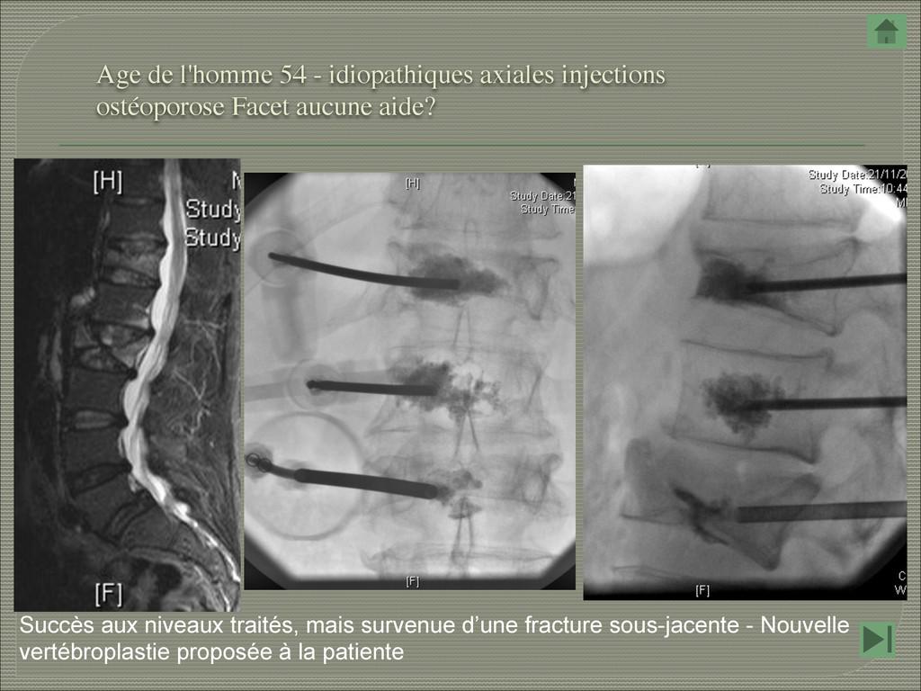 Age de l'homme 54 - idiopathiques axiales injec...