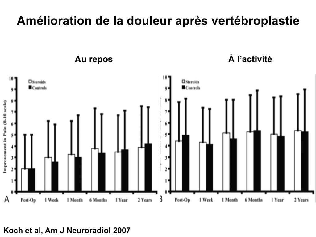 Koch et al, Am J Neuroradiol 2007 Amélioration ...