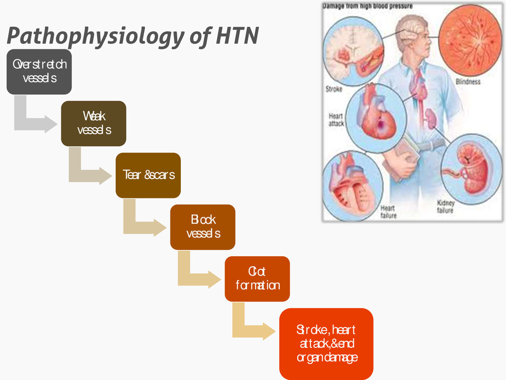 Pathophysiology of HTN Overstretch vessels Weak...
