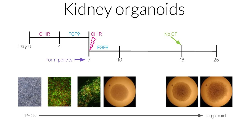 Kidney organoids Day 0 4 7 10 18 25 CHIR FGF9 F...
