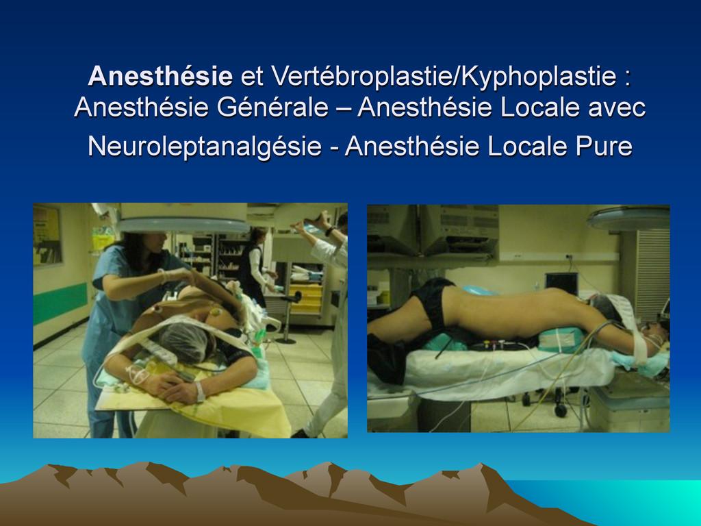 Anesthésie et Vertébroplastie/Kyphoplastie : An...