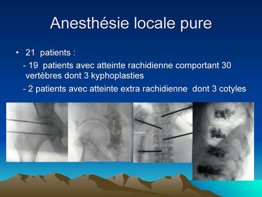 Anesthésie locale pure • 21 patients : - 19 pat...