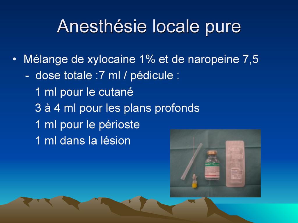 Anesthésie locale pure • Mélange de xylocaine 1...