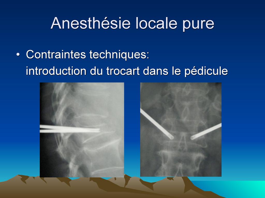 Anesthésie locale pure • Contraintes techniques...