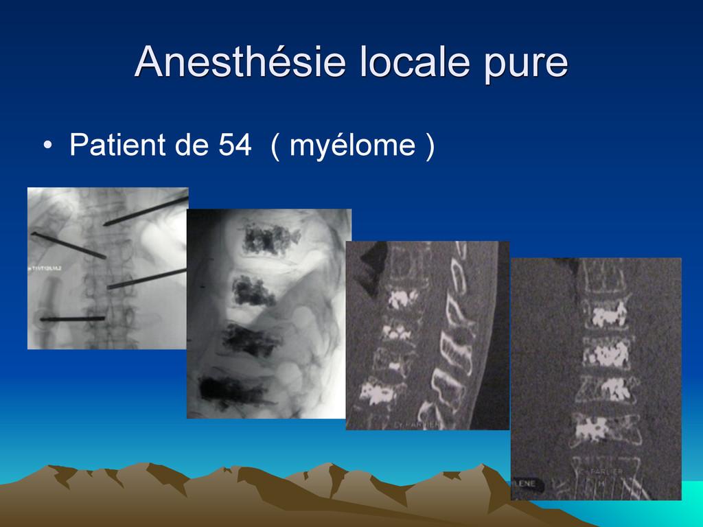 Anesthésie locale pure • Patient de 54 ( myélom...