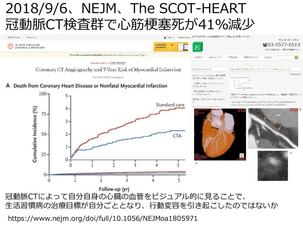 2018/9/6、NEJM、The SCOT-HEART 冠動脈CT検査群で心筋梗塞死が41%...