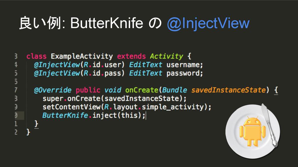 良い例: ButterKnife の @InjectView