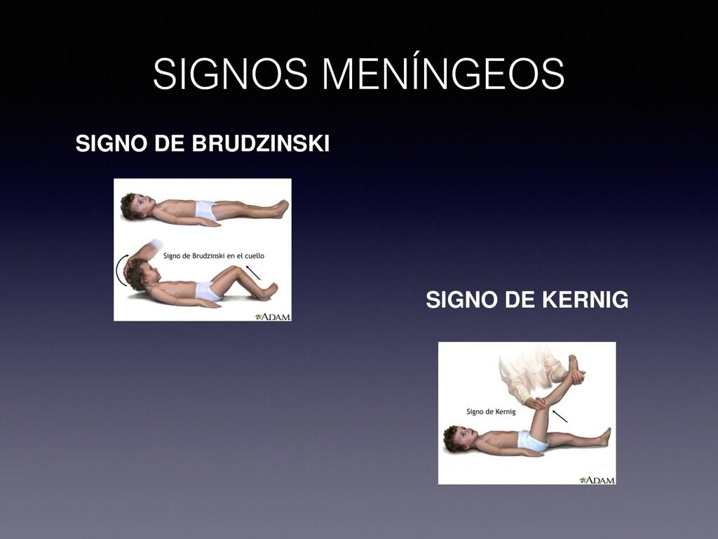 SIGNOS MENÍNGEOS SIGNO DE BRUDZINSKI SIGNO DE K...