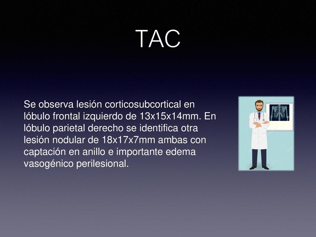 Se observa lesión corticosubcortical en lóbulo ...