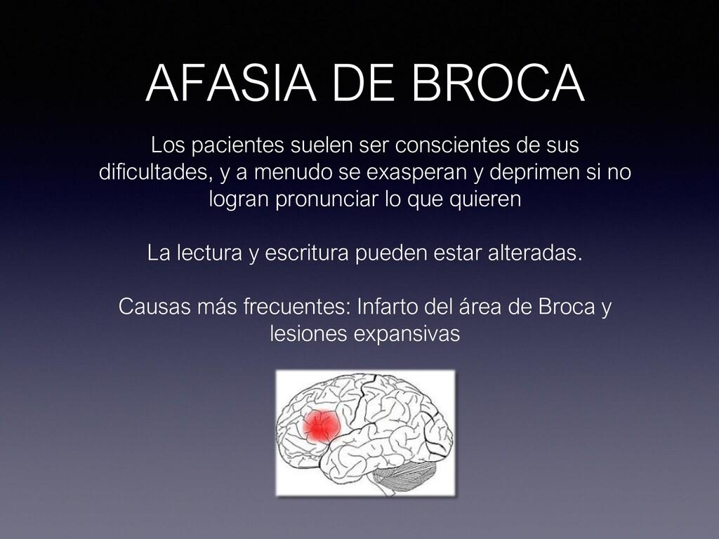 AFASIA DE BROCA Los pacientes suelen ser consci...