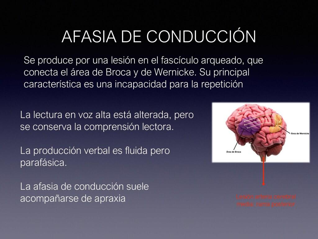 AFASIA DE CONDUCCIÓN Se produce por una lesión ...