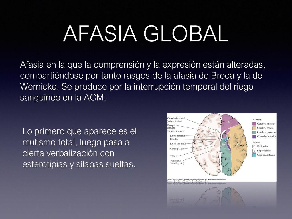 AFASIA GLOBAL Afasia en la que la comprensión y...