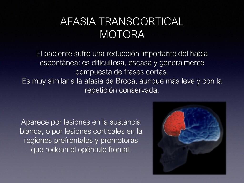 AFASIA TRANSCORTICAL MOTORA El paciente sufre u...