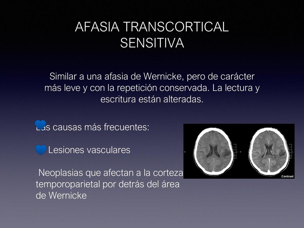 AFASIA TRANSCORTICAL SENSITIVA Similar a una af...