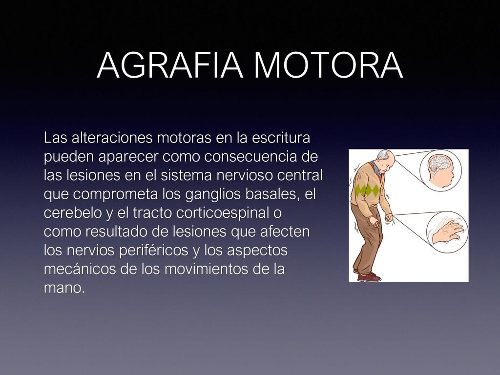 AGRAFIA MOTORA Las alteraciones motoras en la e...