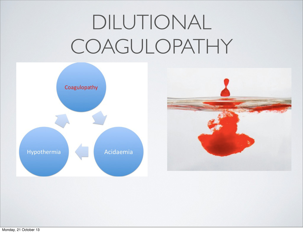 DILUTIONAL COAGULOPATHY Monday, 21 October 13