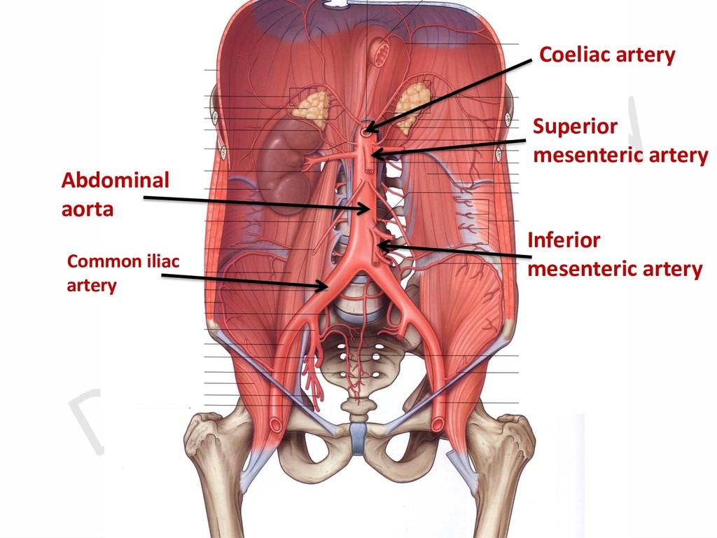 Abdominal aorta Common iliac artery Coeliac art...