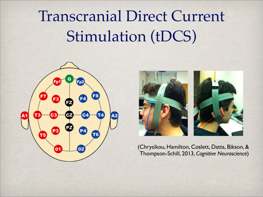 Transcranial Direct Current Stimulation (tDCS) ...