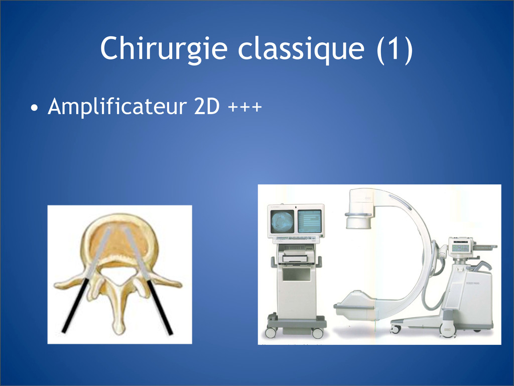 Chirurgie classique (1) • Amplificateur 2D +++