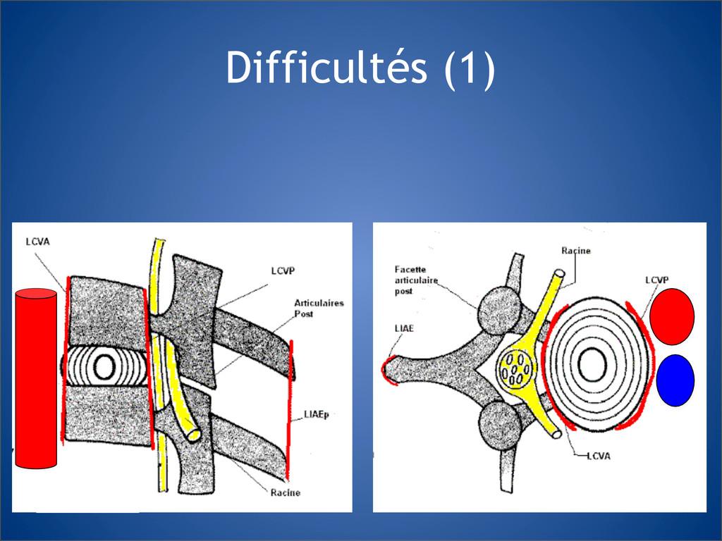 Difficultés (1)
