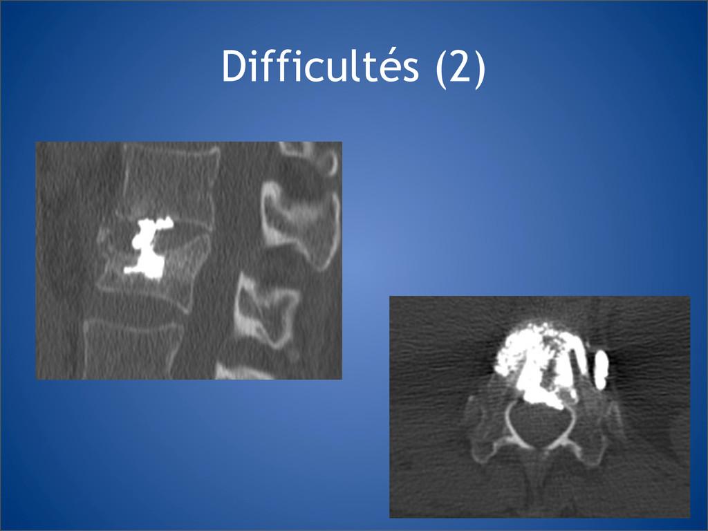 Difficultés (2)