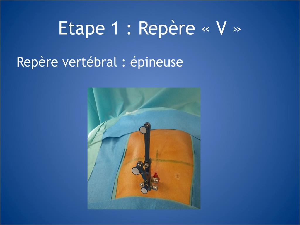 Etape 1 : Repère « V » Repère vertébral : épine...
