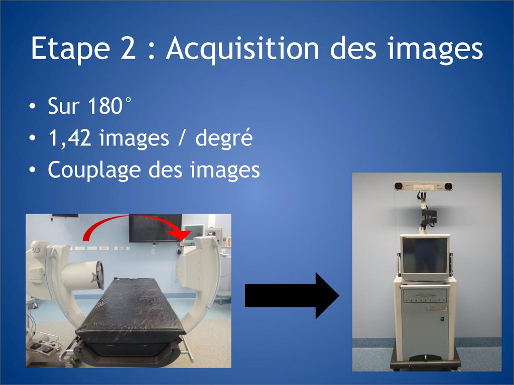 Etape 2 : Acquisition des images • Sur 180° • 1...