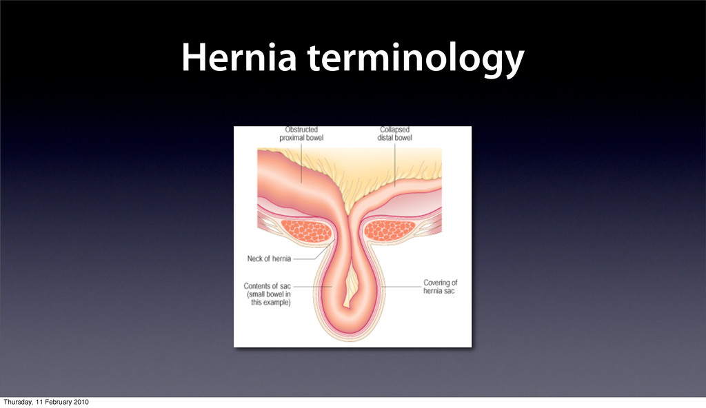 Hernia terminology Thursday, 11 February 2010