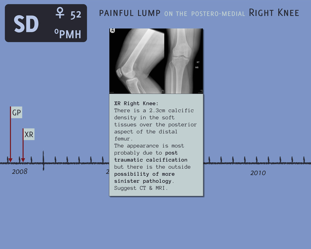 2008 2009 2010 SD GP XR painful lump on the pos...