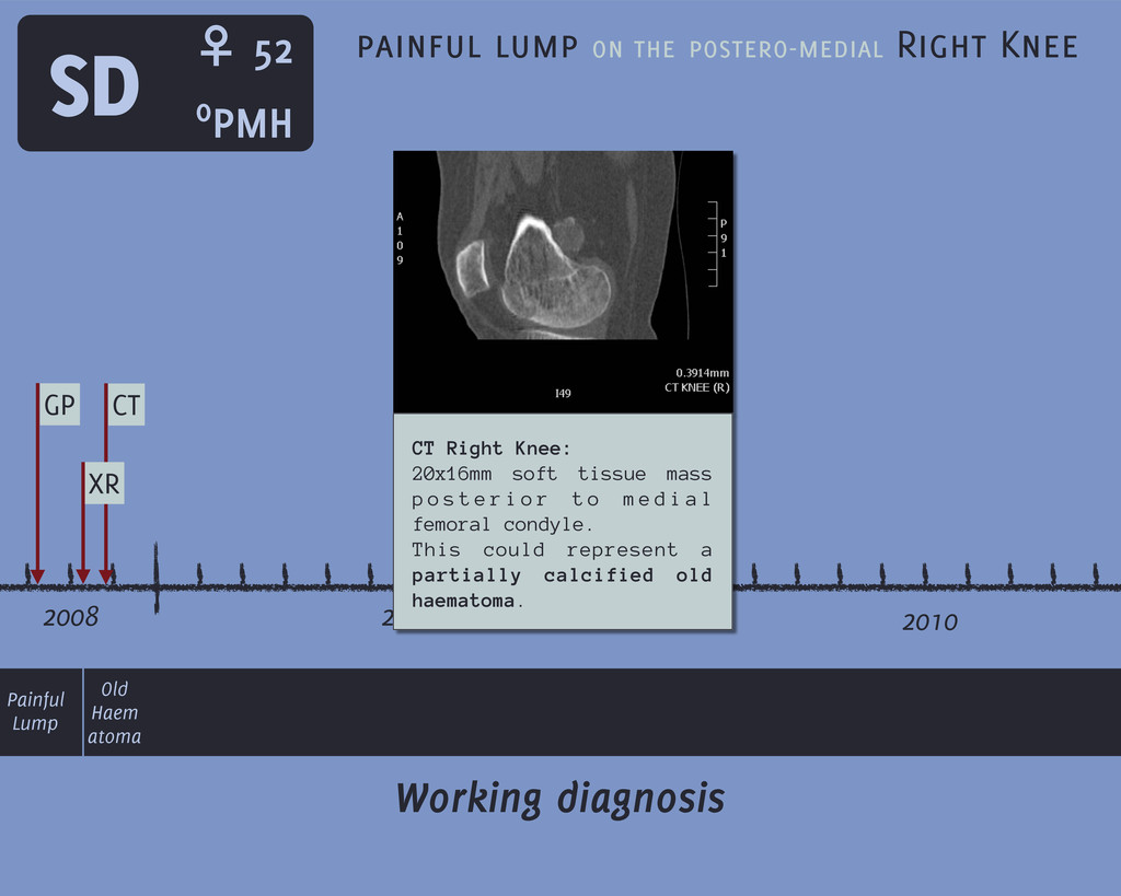 2008 2009 2010 SD GP Working diagnosis painful ...