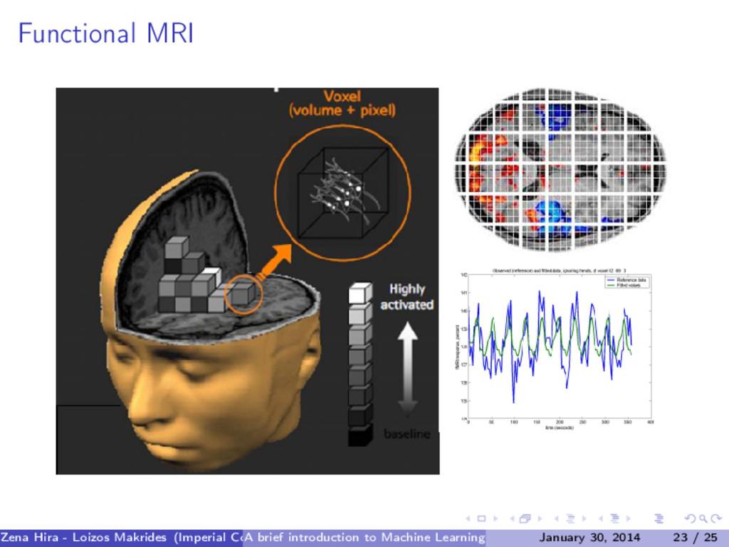 Functional MRI Zena Hira - Loizos Makrides (Imp...