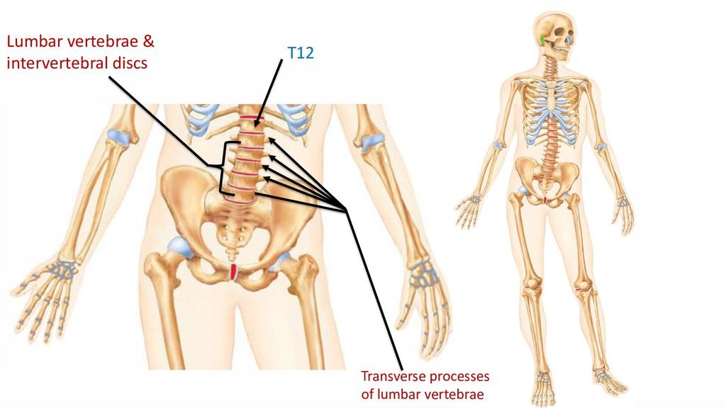 T12 Lumbar vertebrae & intervertebral discs Tra...