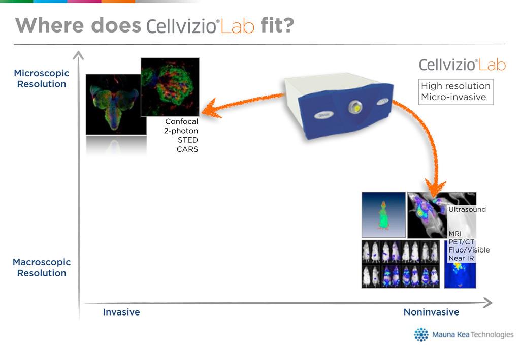 Microscopic Resolution Noninvasive Invasive Mac...