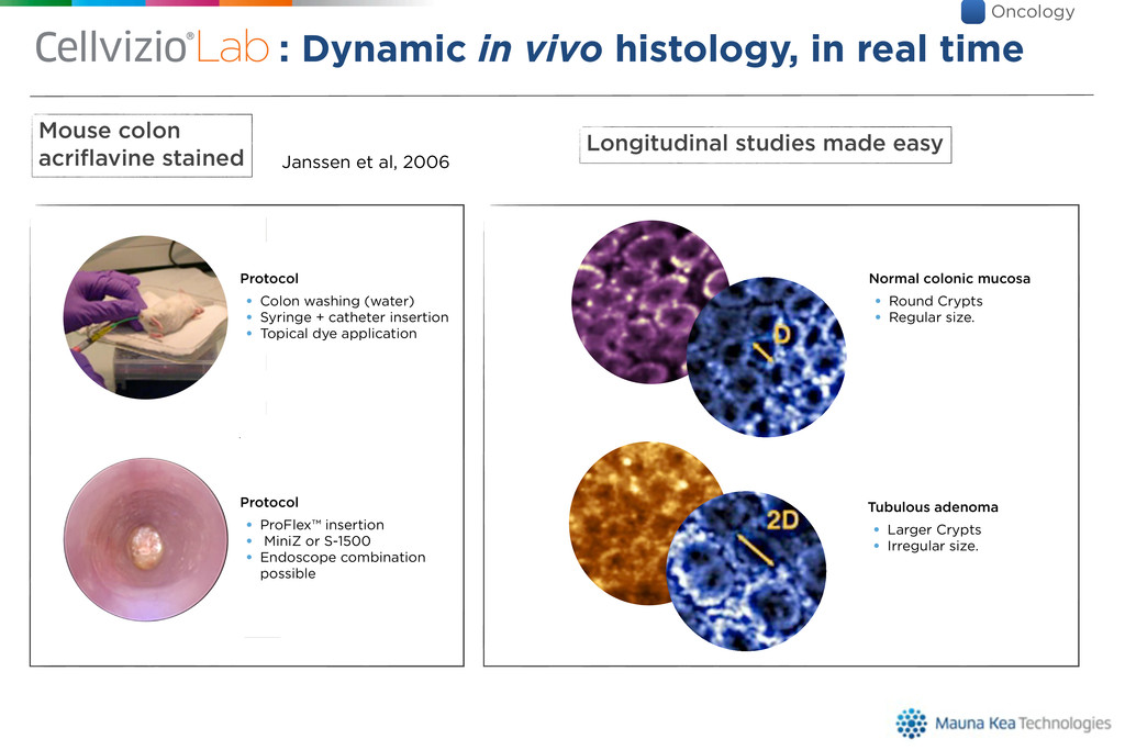 : Dynamic in vivo histology, in real time is ? ...
