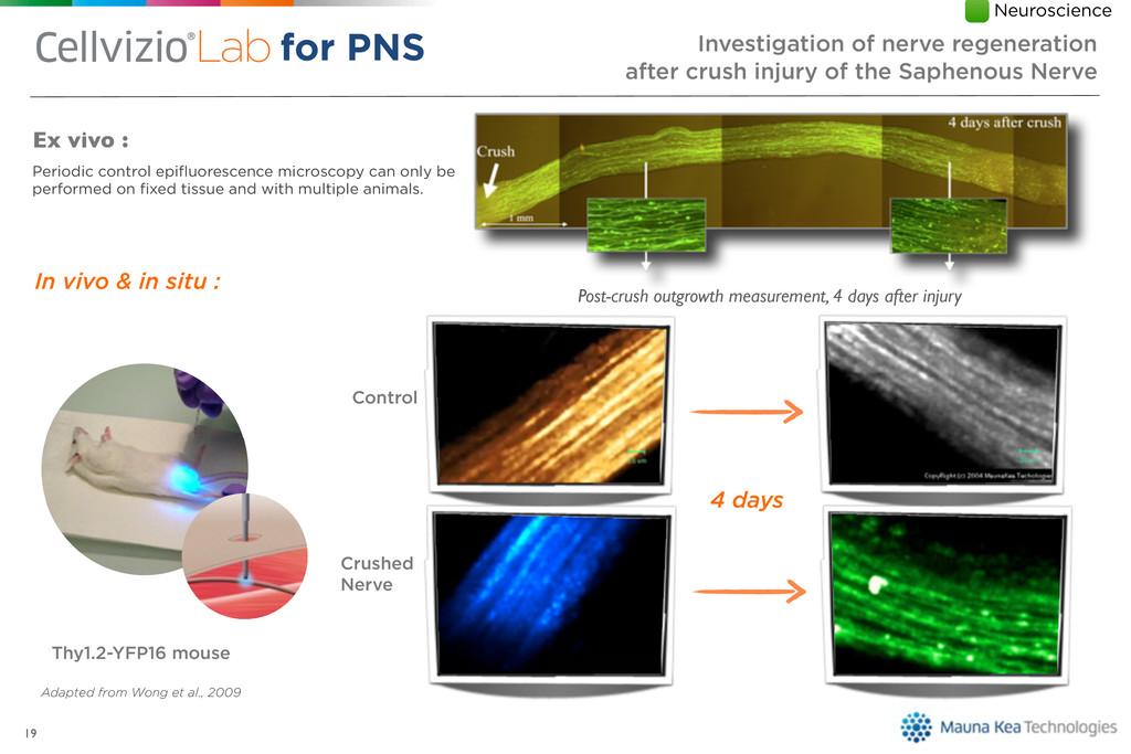 19 Ex vivo : Periodic control epifluorescence mi...