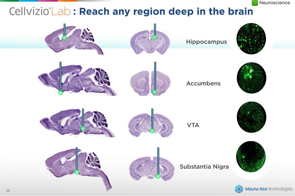 Substantia Nigra VTA Accumbens Hippocampus 25 :...