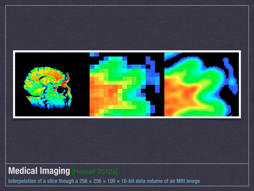 Medical Imaging [Haskell 2012a] Interpolation o...
