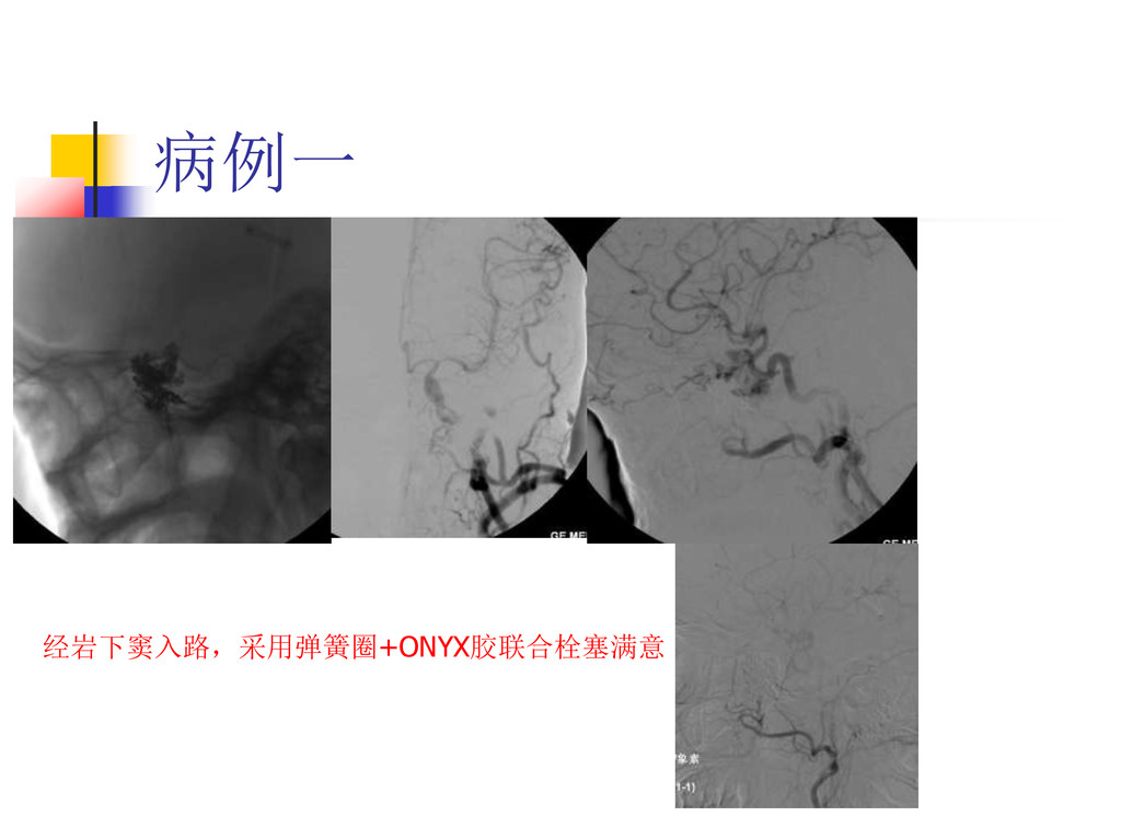 病例一 经岩下窦入路,采用弹簧圈+ONYX胶联合栓塞满意