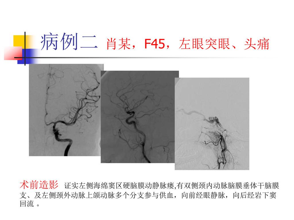 病例二 肖某,F45,左眼突眼、头痛 术前造影 证实左侧海绵窦区硬脑膜动静脉瘘,有双侧颈内动脉...