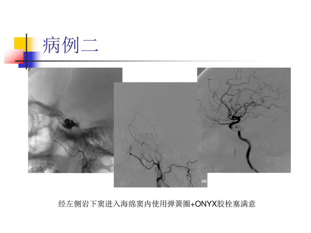 病例二 经左侧岩下窦进入海绵窦内使用弹簧圈+ONYX胶栓塞满意