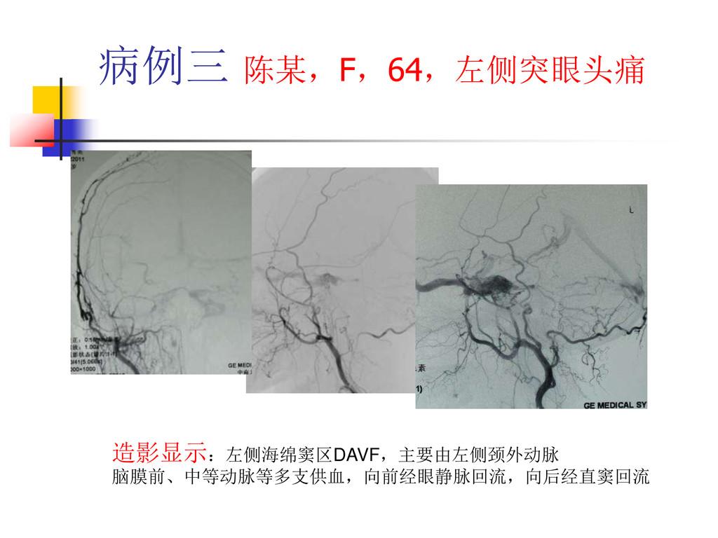 病例三 陈某,F,64,左侧突眼头痛 造影显示:左侧海绵窦区DAVF,主要由左侧颈外动脉 脑膜...