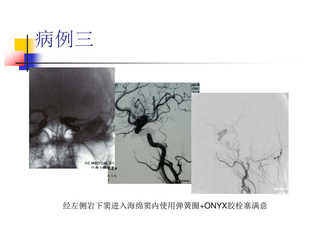 病例三 经左侧岩下窦进入海绵窦内使用弹簧圈+ONYX胶栓塞满意