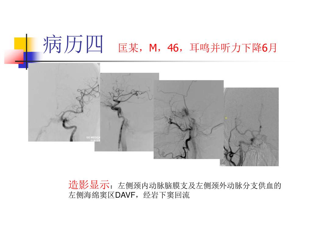 病历四 匡某,M,46,耳鸣并听力下降6月 造影显示:左侧颈内动脉脑膜支及左侧颈外动脉分支供血...