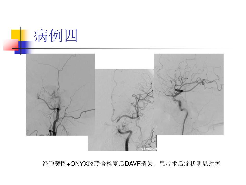 病例四 经弹簧圈+ONYX胶联合栓塞后DAVF消失,患者术后症状明显改善