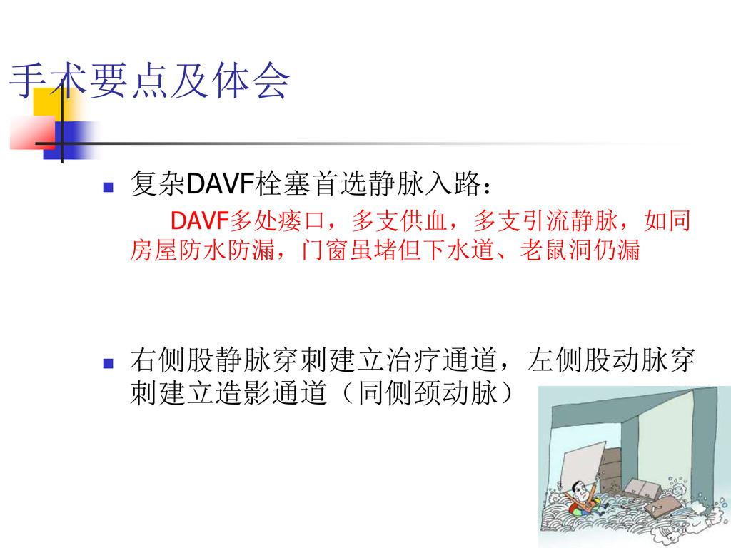 手术要点及体会  复杂DAVF栓塞首选静脉入路: DAVF多处瘘口,多支供血,多支引流静脉,...
